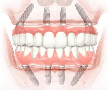 implant denture statistics